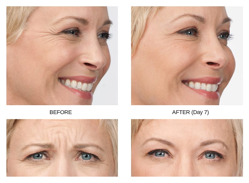 Botox Before & After Image