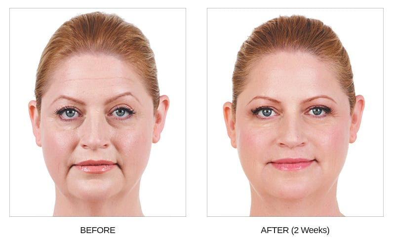 Juvederm Before & After Photos